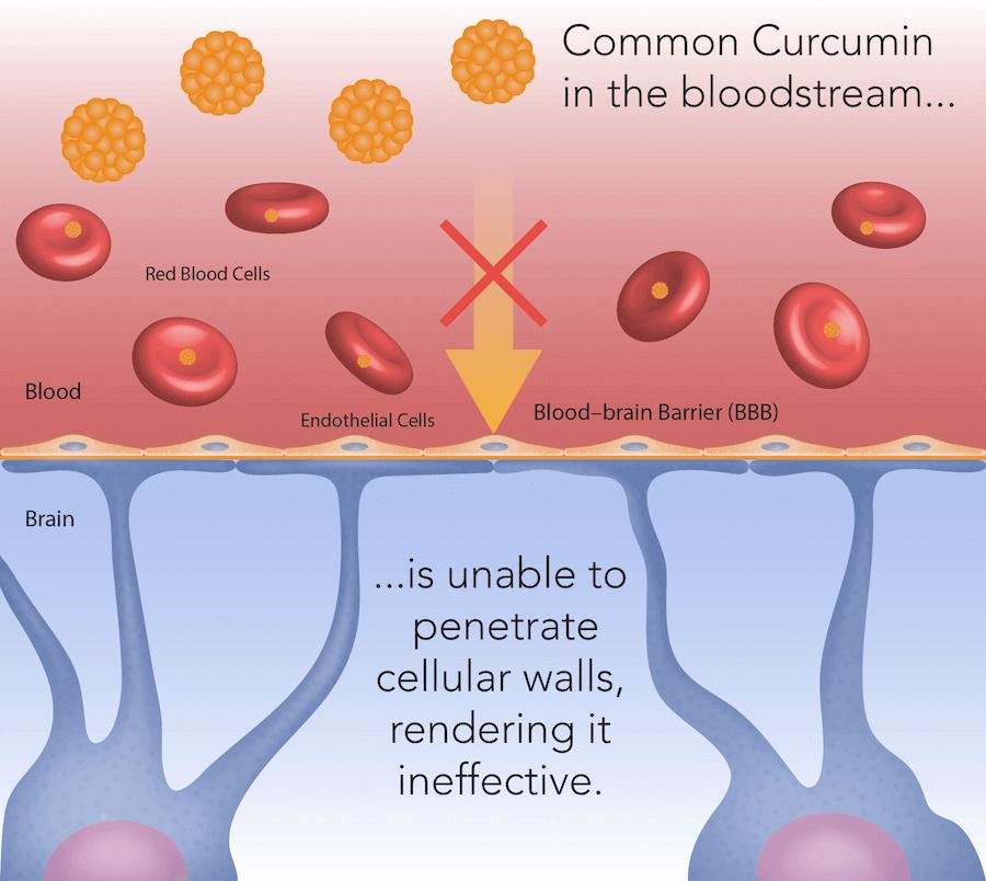 Common Curcumin